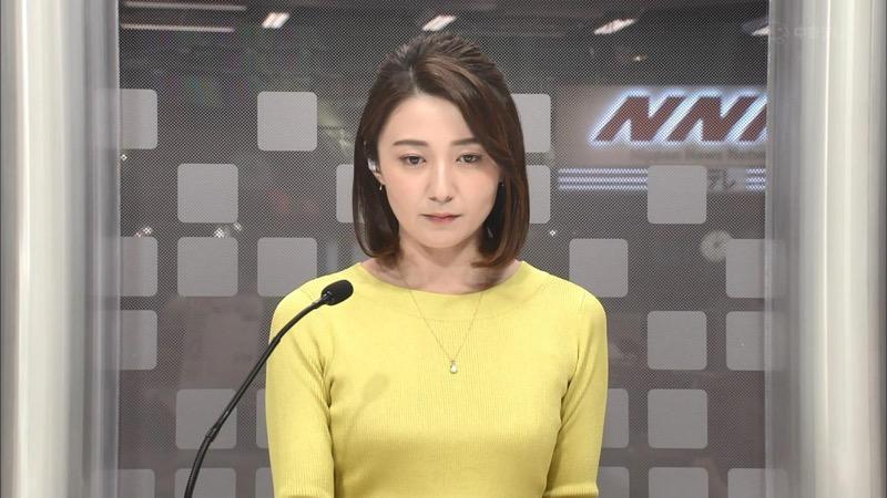 【放送事故画像】日テレ女子アナの久野静香さん太ももを見せたりヤバい表情を画面に晒してしまうwwww 42